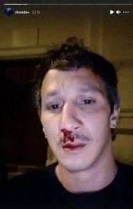 Agression homophobe Corse vidéo Zbendav Instagram